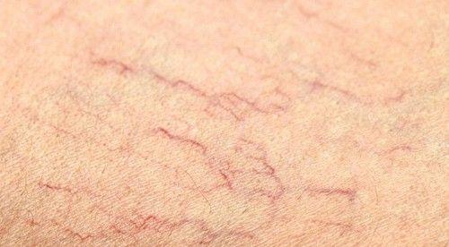 Giãn tĩnh mạch mạng nhện có cần điều trị không?