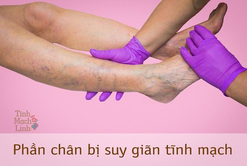 Suy giãn tĩnh mạch chân chẩn đoán và cách điều trị theo Đông Y