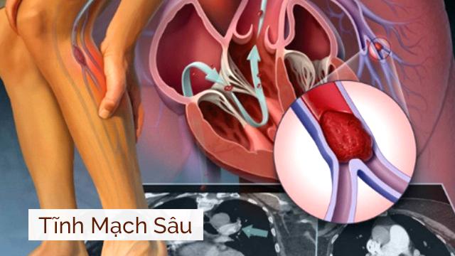 Suy giãn tĩnh mạch sâu 2 chi dưới chẩn đoán và cách điều trị Đông y