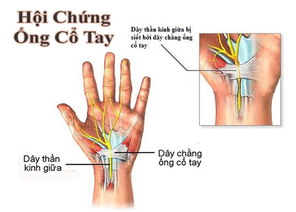 Chẩn đoán và điều trị hội chứng ống cổ tay như thế nào cho đúng?