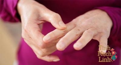 Tê đầu ngón tay: Phương pháp chẩn đoán và điều trị hiệu quả nhất