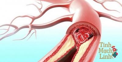 Ngăn ngừa biến chứng của tắc động mạch chi dưới gây đoạn chi