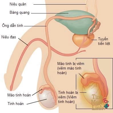 Bệnh sa đì ở nam giới: Nguyên nhân, biểu hiện, cách điều trị