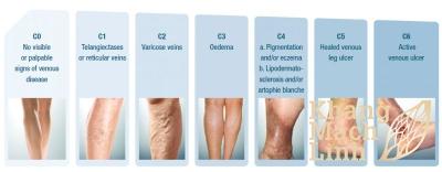 Nhận biết 7 cấp độ của bệnh lý suy giãn tĩnh mạch chân