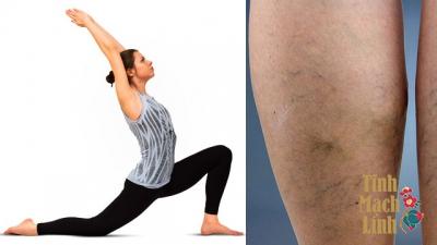Suy giãn tĩnh mạch có tập yoga được không?