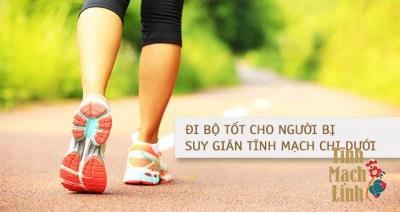 Lợi tích từ việc đi bộ đối với người suy giãn tĩnh mạch chi dưới