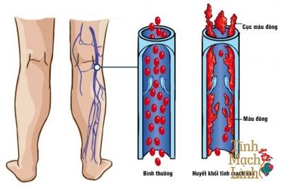 Những nguy cơ và biến chứng khi viêm tắc mạch máu