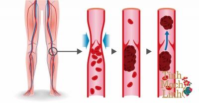 Những nguyên nhân chính gây bệnh suy giãn tĩnh mạch chi dưới
