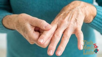 Phòng và điều trị tê chân tê tay theo Y học cổ truyền