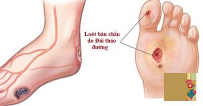 6 bệnh lý về chân 90% bệnh nhân đái tháo đường mắc phải