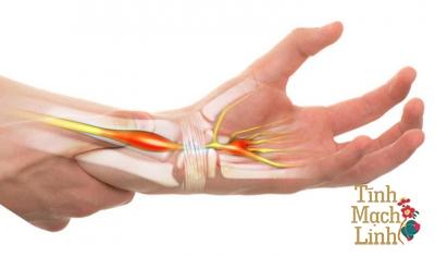 Điều trị hội chứng ống cổ tay theo Y học cổ truyền