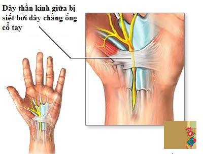 Lưu lại ngay 9 bài tập chữa trị hội chứng ống cổ tay cực dễ