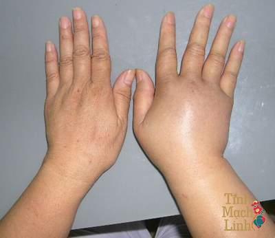 Phù nề tay sau xạ trị ung thư vú có nguy hiểm không?