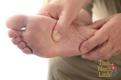 Tê bì chân: Biểu hiện cơ bản của bệnh lý bàn chân ở người tiểu đường