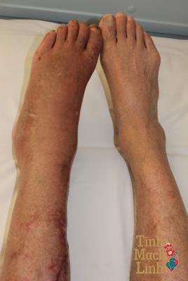 Từ A đến Z những điều cần biết về viêm tắc tĩnh mạch chân